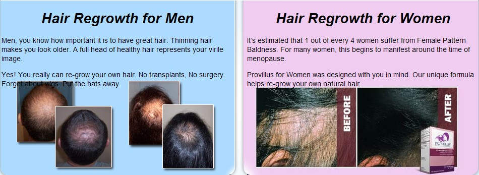 Hair Regrowth Products Treatment Provillus For Women and Man